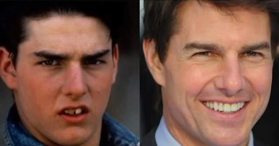 Tom Cruise Ortodoncia Antes y despues