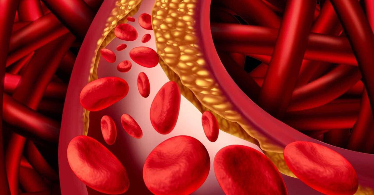 colesterol y covid19