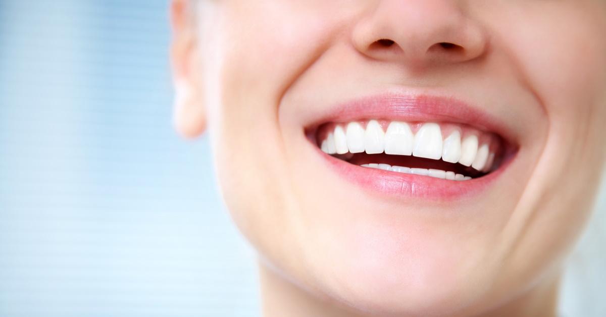 Tratamientos esteticos dentales